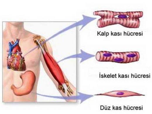 Sırt kaslarının miyozit - belirtileri ve tedavisi